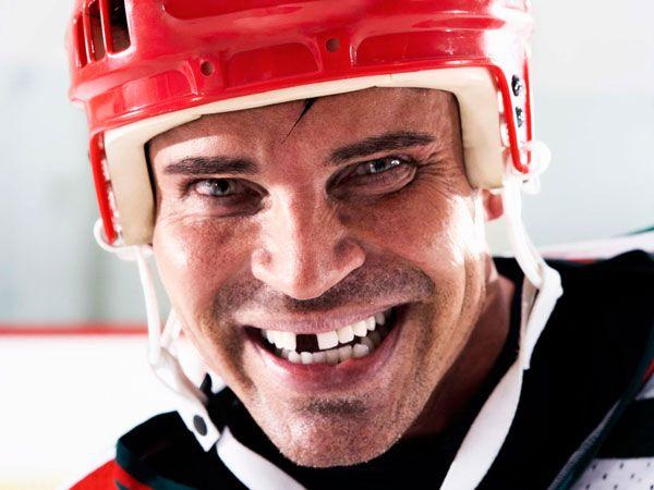 Hamilton Custom Mouth Guards Sports Mouth Guards Mouth Guard Hamilton On Mouth Guard Mouth Guard Sports Teeth