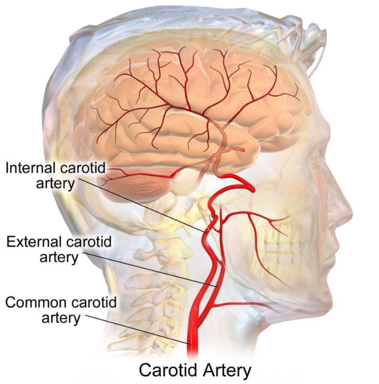 Illustration of the common carotid artery of the neck and it ...