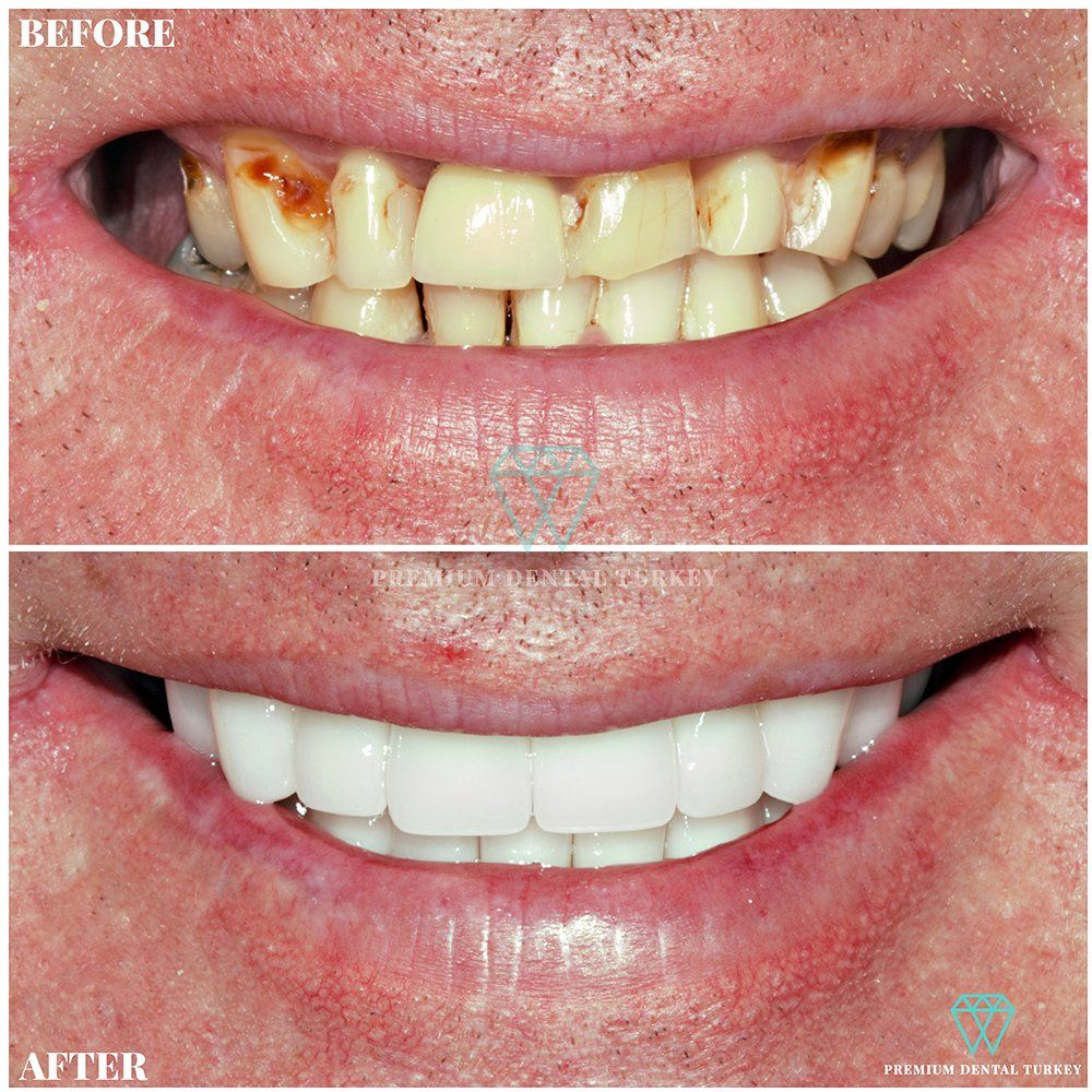 We applied Dental Implants and full mouth Zirconium Dental Implants