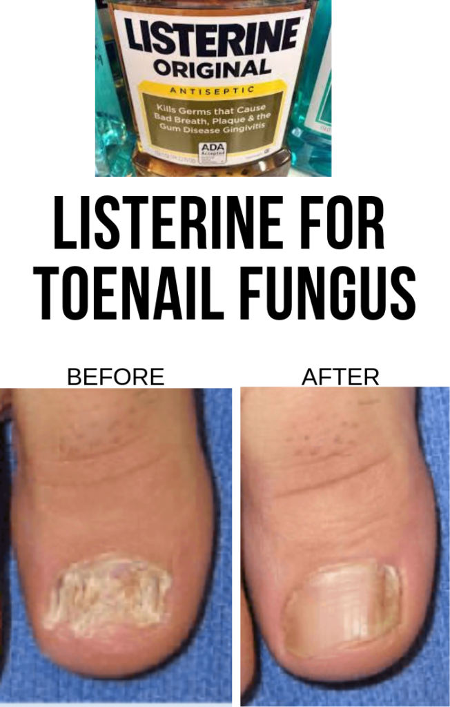 How To Use Listerine For Toenail Fungus Effortless