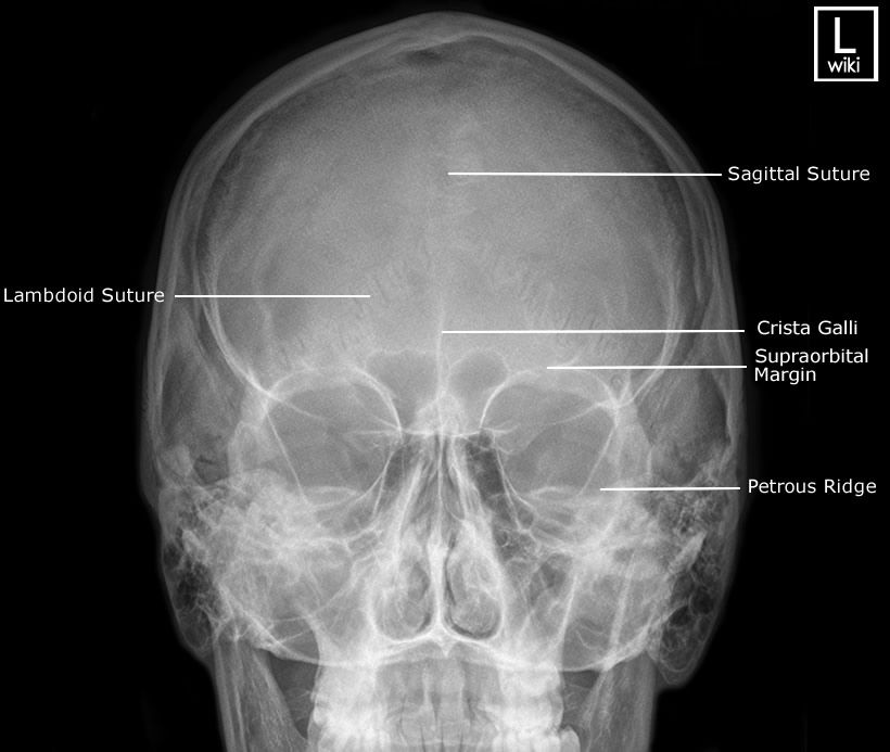X Ray Skull Views Skull - PA 15 (Caldwel...