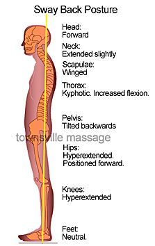 occlusion posture에 대한 이미지 검색결과