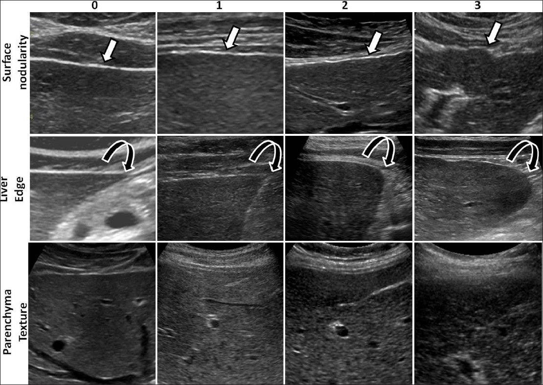 Accuracy Of Routine Clinical Ultrasound For Staging Of Liver Fibrosis Choong Cc Venkatesh Sk