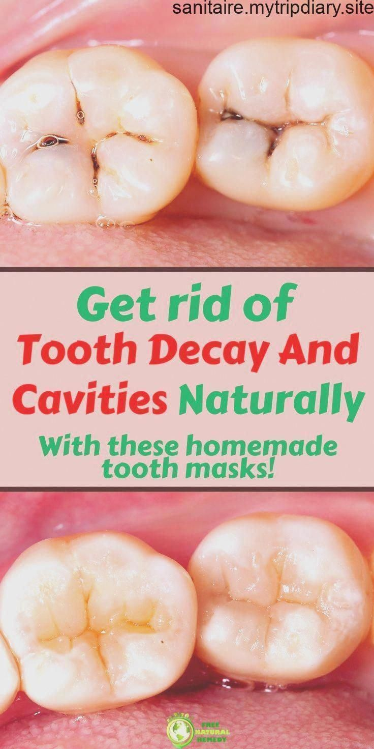 How To Heal Tooth Decay And Reverse Cavities Naturally