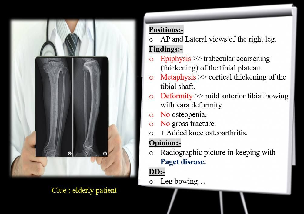 Paget Disease Knee osteoarthritis, Pagets disease, Paget