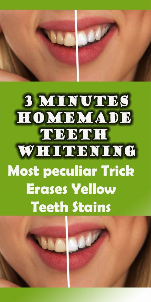 Most peculiar Trick Erases Yellow Teeth Stains In 3 Minutes-homemade teeth whitening  #bestteethwhitening
