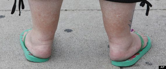 Can walking in place help lose weight picture 10