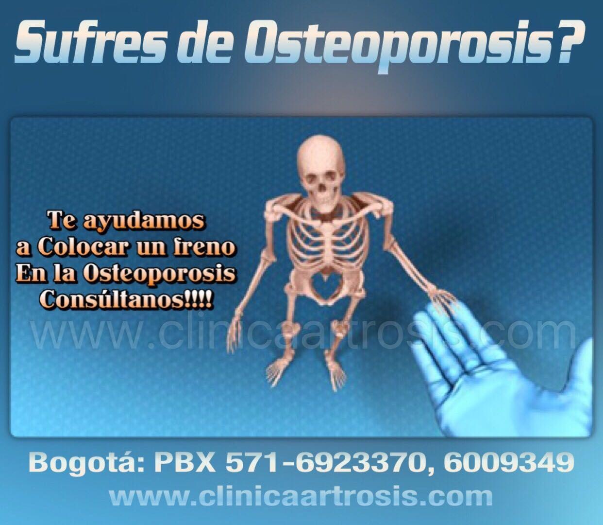 40++ Ejercicios para la osteoporosis avanzada ideas in 2021