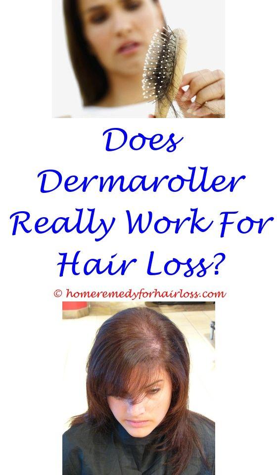 Best Hair Loss Treatment For Men | Hair loss, Hair loss treatment ...
