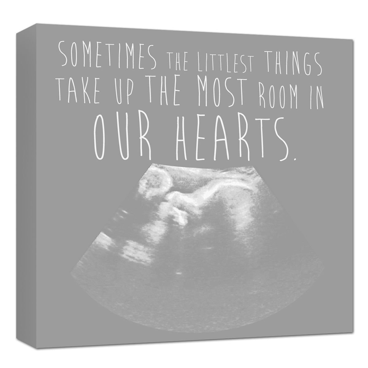 Amazing Christmas Gifts For Her: Ultrasound Artwork Sonogram Canvas Nursery Art