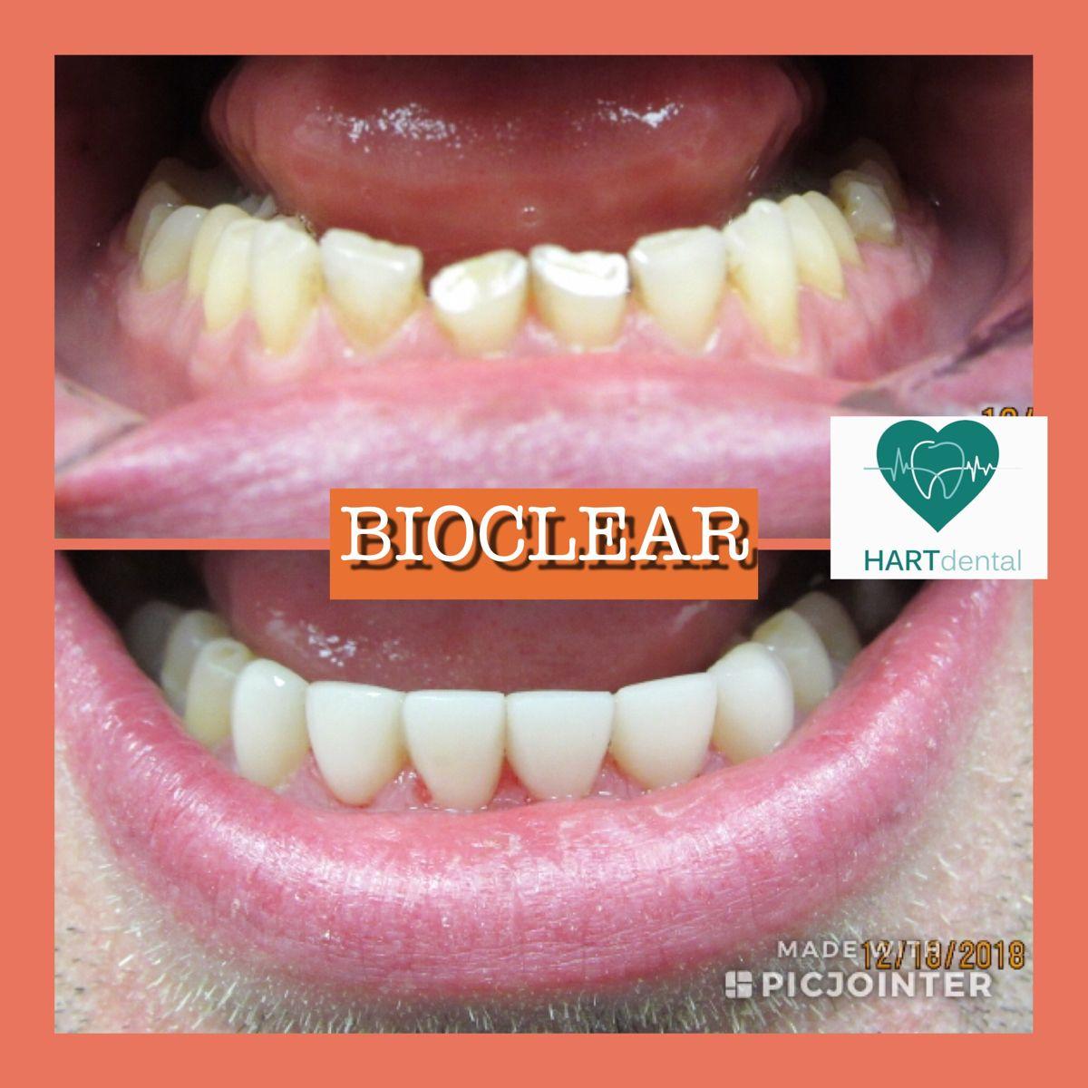 Bioclear restorations dental veneers restoration