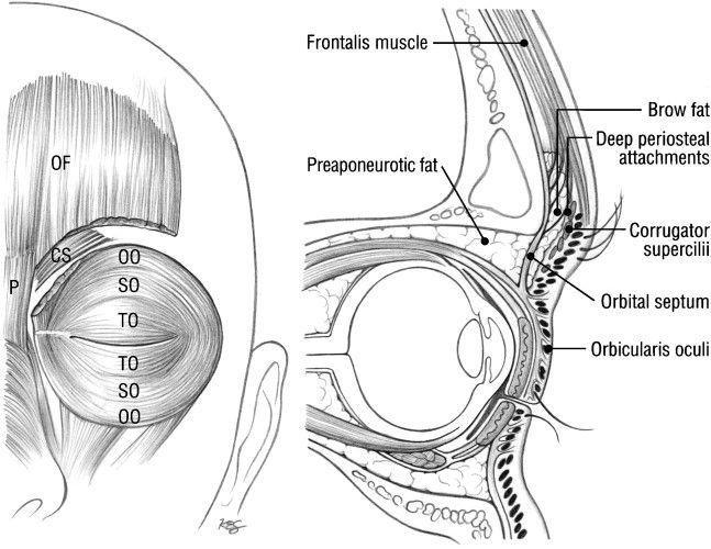 Orbicularis Oculi Orbital Septal And Tarsal Portions Cross