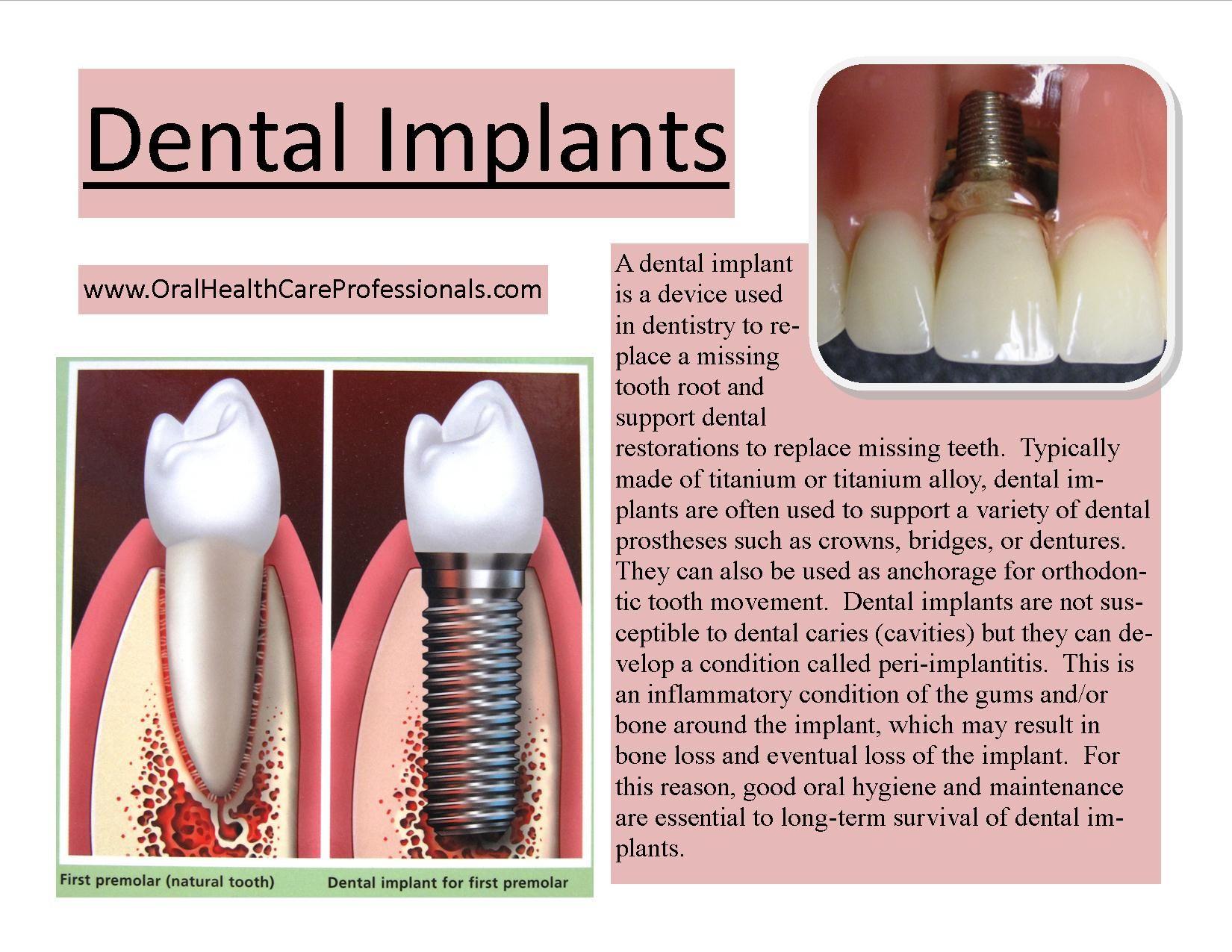 IMPLANTES DENTALES - Un implante dental es un dispositivo utilizado ...