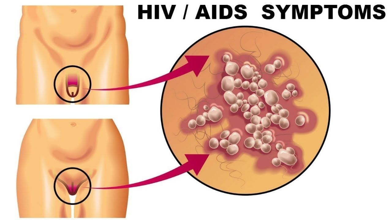 Symptoms of hiv aids in men - You might have HIV without knowing it