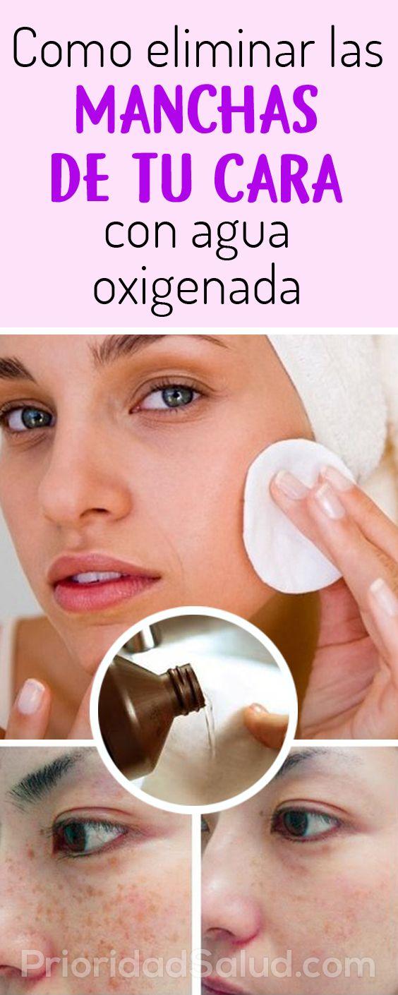 Como Eliminar Manchas De Tu Cara Con Agua Oxigenada Skin Care Toner Products Beauty Secrets Homemade Moisturizer