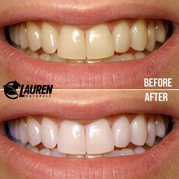 Coconut Oil Swish Coconut Oil Pulling And Mouthwash For Teeth