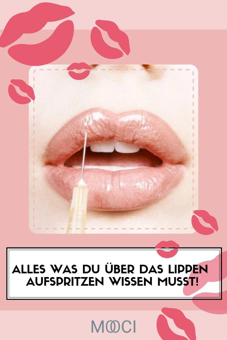 Mooci Durch Lippenaufspritzen Zum Volleren Kussmund