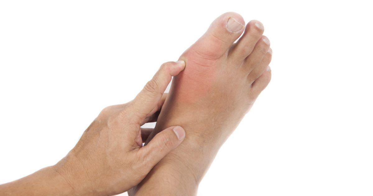 ما هي أعراض النقرس الحاد واسبابه وعلاجه موسوعة What Is Gout Gout Hemorrhoids