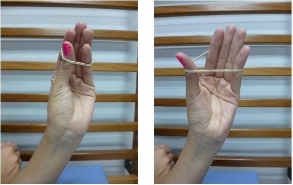 De quervain kinesico tendinitis tratamiento