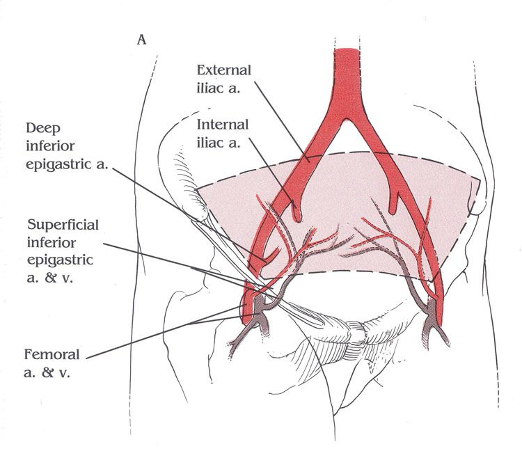 Inferior Epigastric Artery Diagram - Library Of Wiring Diagram •