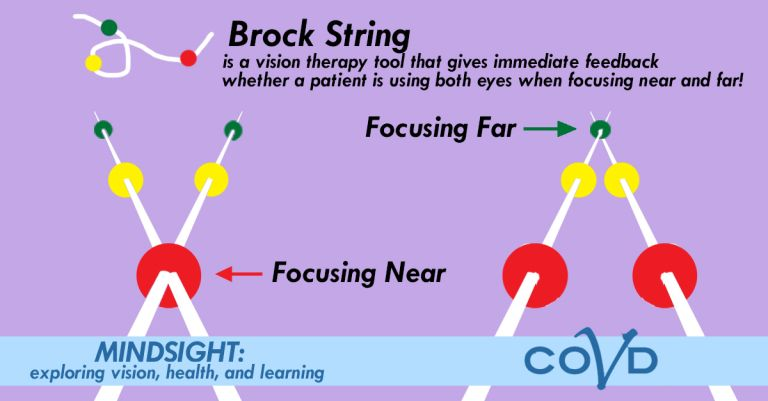 Sight Focusing Training Sight Convergence Training Tool Used for Convergence Insufficiency Training Brock String Sports Sight Training