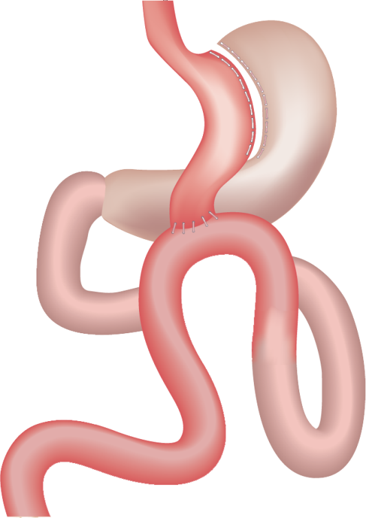 Mini Gastric Bypass One Anastomosis Course Bariatric News