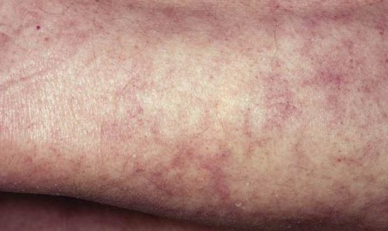 WHAT CAUSES BLOTCHY SKIN ON ARMS