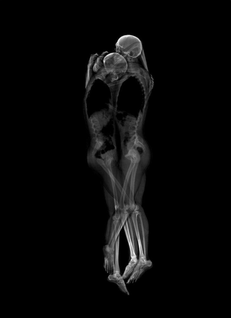 Los artistas japoneses Ayako Kanda y Mayuka Hayashi han realizado una serie de íntimos retratos de parejas en Rayos X. Utilizaron tomografía computarizada y una máquina de rayos X para registrar parejas con gran proximidad. La cercanía de los esqueletos sugiere que las parejas bien podrían estar practicando sexo.