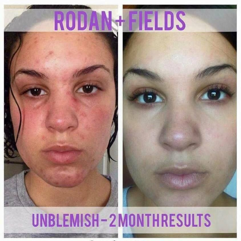 Meet Jaclyn Singletary. For YEARS she has struggled with her skin; it was her biggest insecurity. She had tried EVERYTHING with no luck!! After months of doubting & procrastinating, she finally listened to her brother Matt, a fellow consultant, and gave Rodan + Fields UNBLEMISH a try... Now she loves her skin SO MUCH that just yesterday she became a consultant! If you or someone you know is battling acne, I can help! https://iarman.myrandf.com/Shop/Unblemish