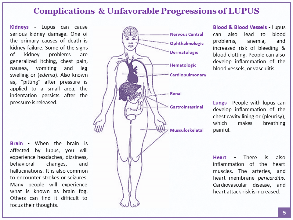 Complications Of Lupus Systemic Autoimmune Disease Lupus Kidney Damage