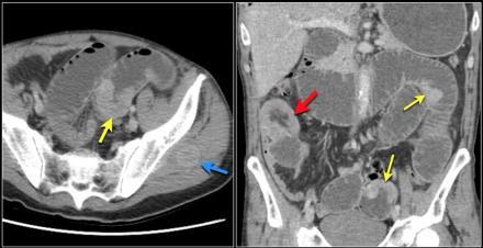The Radiology Assistant Small Bowel Tumors in 2020