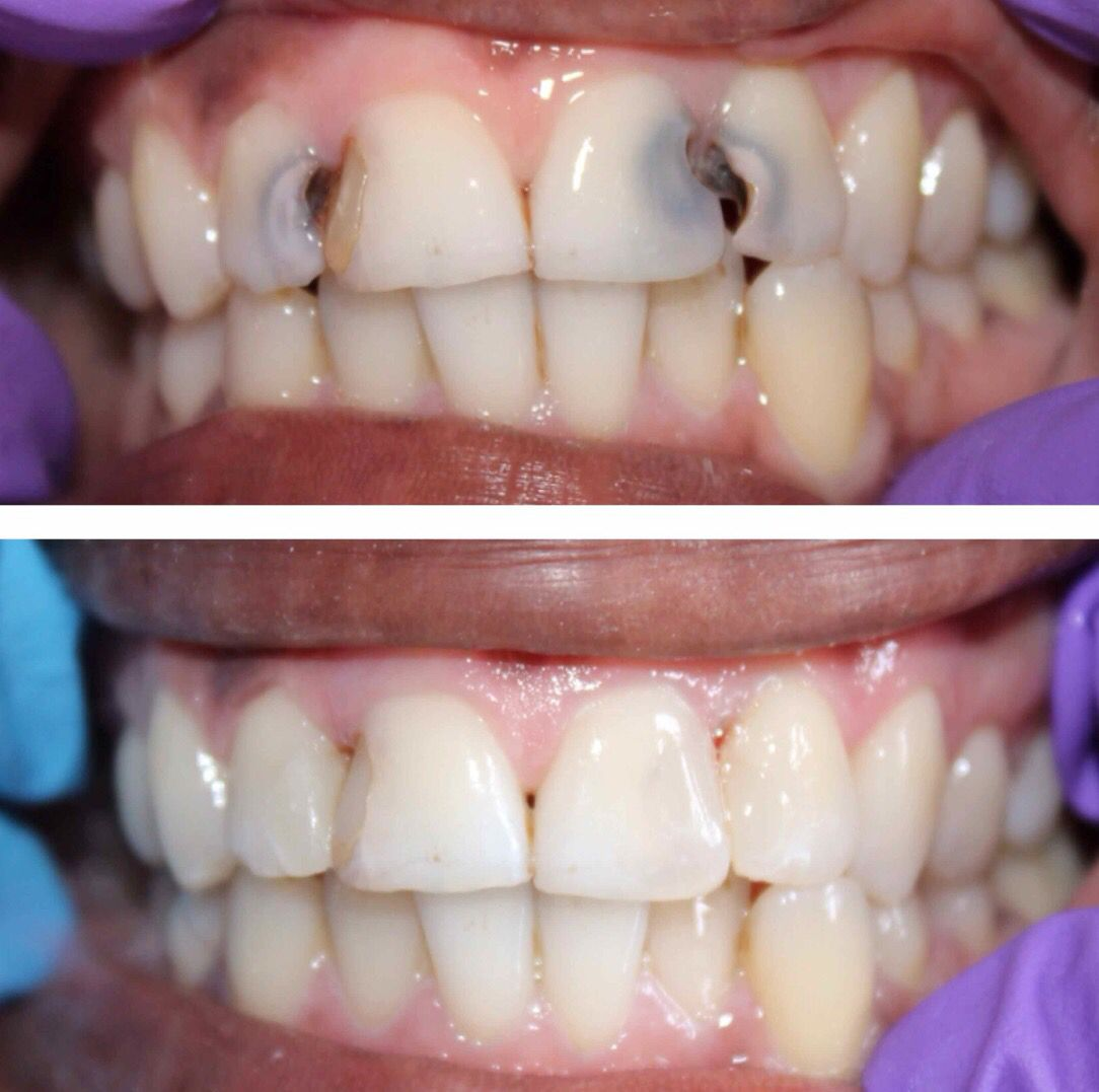What do you think causes extreme caries?