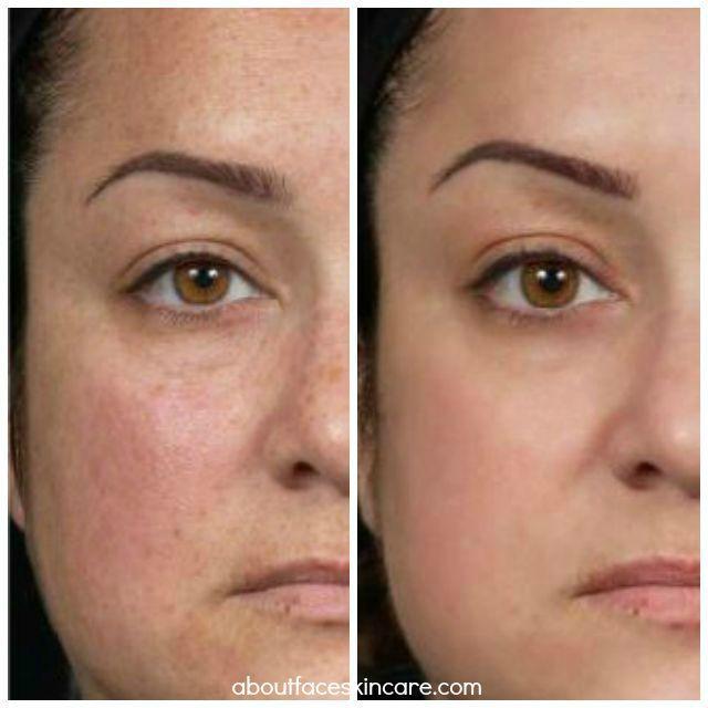 Clear Brilliant Philadelphia Face Skin Care Face Skin Skin Care Blackheads