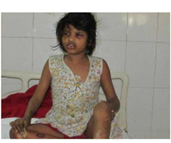 Mogwli esiste e si trova in India: trovata in una foresta una bambina allevata dalle scimmie - Mondo