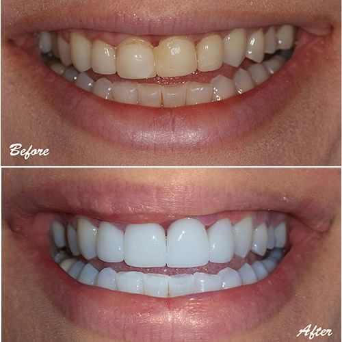 Pin On Before And After Smile Makeovers Dentist In Glendale