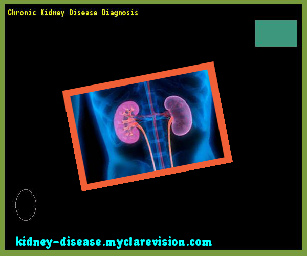 Chronic Kidney Disease Diagnosis 114734 Start Healing