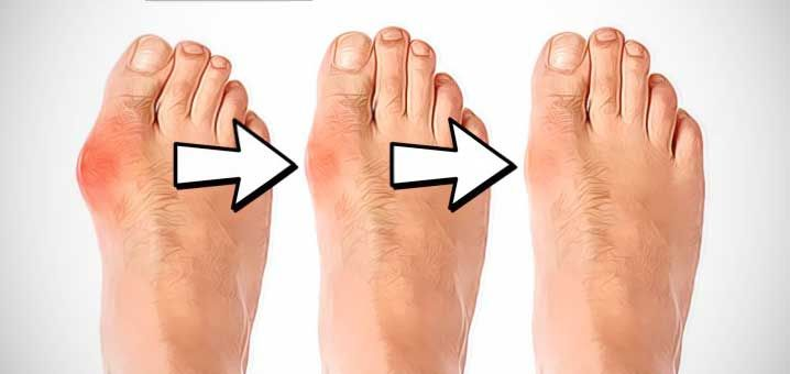 Comment soigner un oignon au pied naturellement ? (Hallux