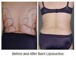 Back Liposuction Before and After Photos