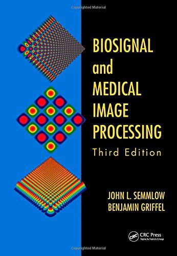 Biosignal and medical image processing 3rd edition pdf download e biosignal and medical image processing 3rd edition pdf download e book fandeluxe Gallery