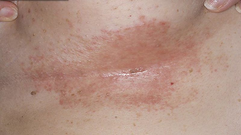 How To Get Rid Of A Rash Under Breasts, The Best Home -7874