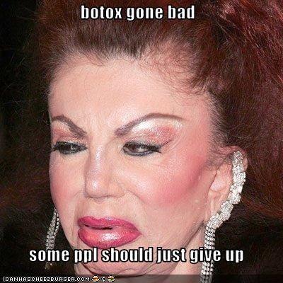 Botox Gone Bad Some Ppl Should Just Give Up Bad Plastic