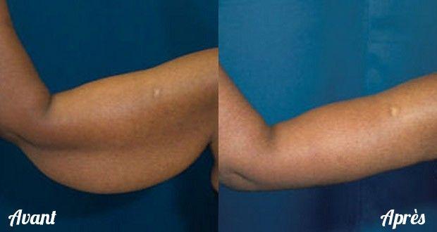 4 exercices pour tonifier vos bras sans utiliser d équipement 5ec8323187a