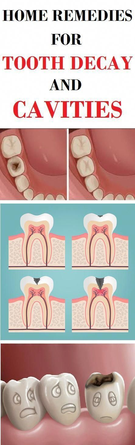 HOME REMEDIES FOR TOOTH DECAY AND CAVITIES #health #tooth Decay #cavities #beauty #fitness #WhyOralC...