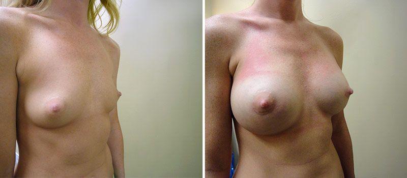 10 tips for breast enlargement
