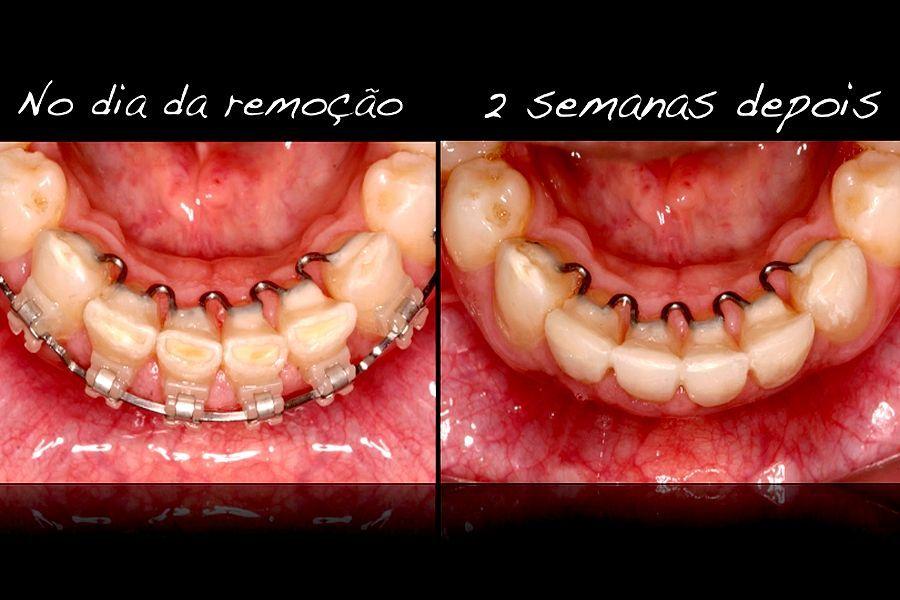ortodontia-dentistica