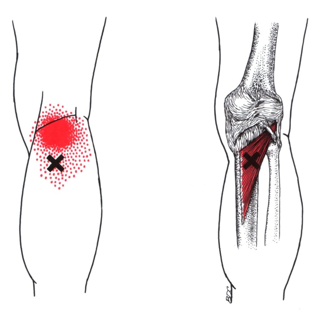 Popliteus | The Trigger Point & Referred Pain Guide | Trigger Points ...