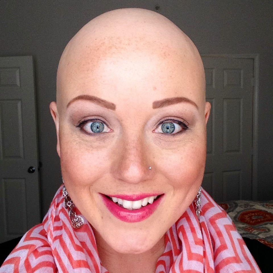 Baldisbeautifuljpg pattern baldness remedies