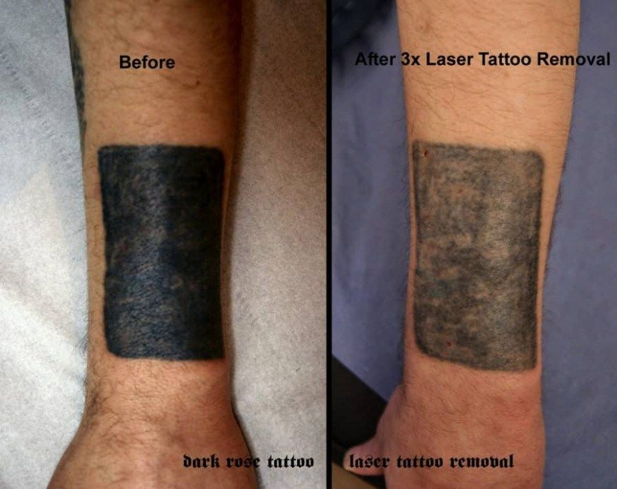 The 10 Common Stereotypes When It Comes To Laser Tattoo Removal