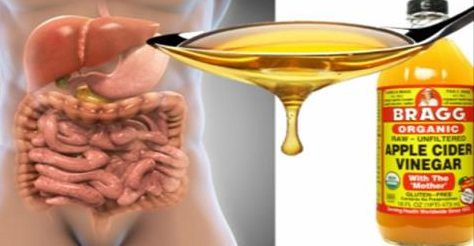 Apple cider vinegar is really making a name for itself in health circles, but it is not o…   Apple cider vinegar, Apple cider benefits, Apple ...