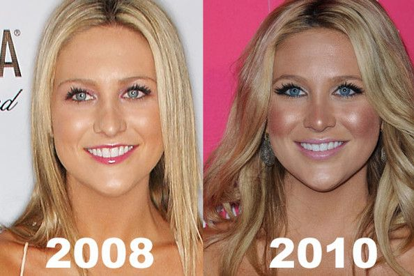 Celebrity Plastic Surgery Before After Photos